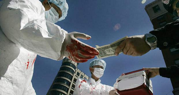 Сократить чёрный рынок можно узаконив трасплантацию в стране