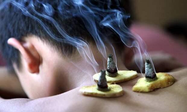 10 необычных китайских медицинских процедур и их эффект
