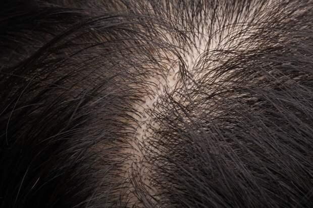 29 странных фактов о человеческом теле, которые могут изменить ваше восприятие себя