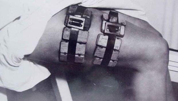 7 ужасных врачебных инструментов прошлого