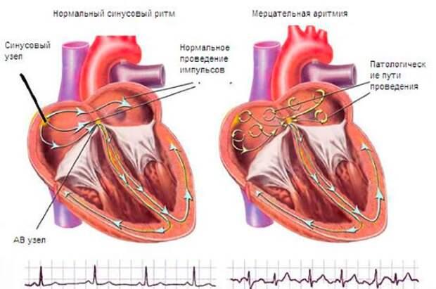 Мерцательная аритмия - причины, симптомы, диагностика и ...