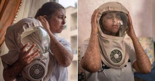 Из-за редкой аллергии насолнце женщина изМарокко ходит вскафандре