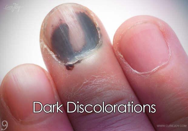 10 заболеваний и проблем с ногтями: о чем они говорят?