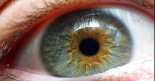 Диабетическая ретинопатия: симптомы и факторы риска (видео)