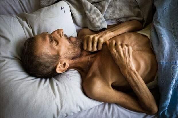 Симптомы внелегочных форм туберкулеза