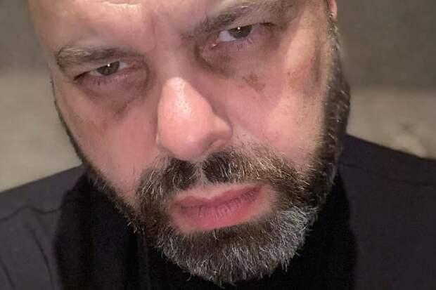 Фадеев выразил желание плюнуть в лицо Зеленскому