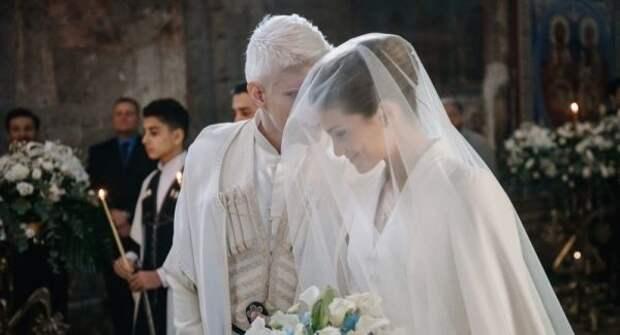 «Такие разные, но смотрятся отлично» — поклонники в восторге от жены модели-альбиноса