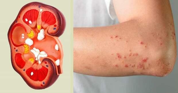 болезни почек симптомы