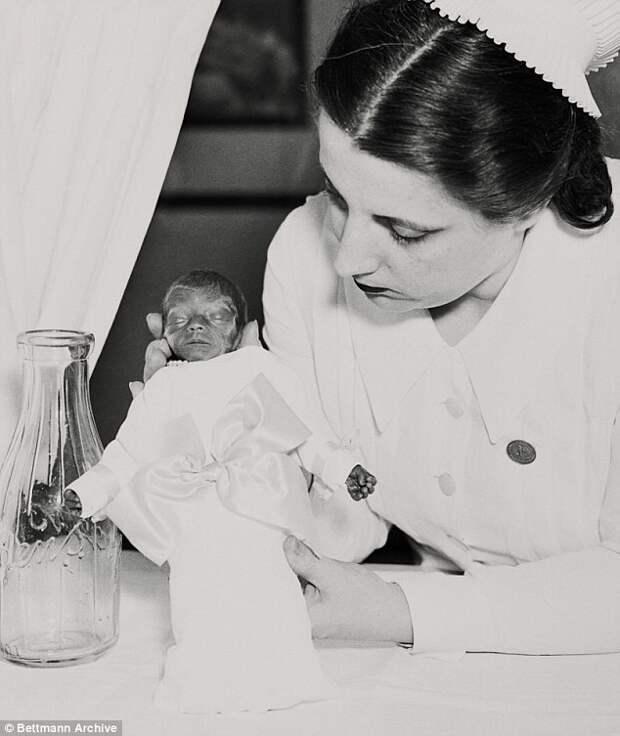 Как аттракцион на Кони-Айленд спас жизни тысячам недоношенных младенцев   аттракцион, кони-айленд, новорожденный, спасение