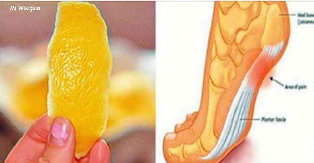 Лимонная цедра может навсегда избавить вас от боли в суставах! Вот что надо делать