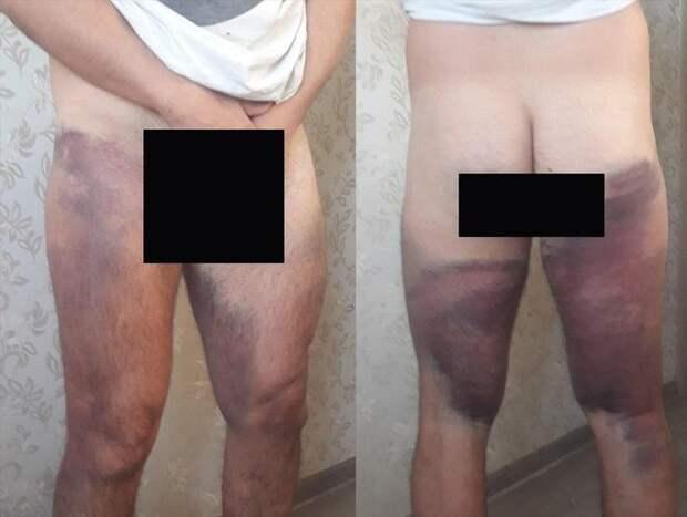 «Раздвигала ноги и прицельно била дубинкой в пах». Один из задержанных в Минске — про жестокость девушки из ОМОНа