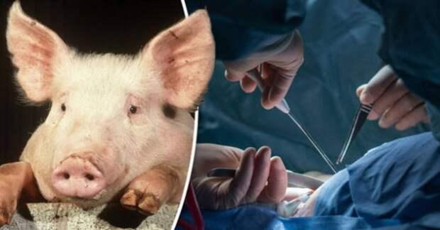 Александр Соколов: От свиньи к человеку? История ксенотрансплантации