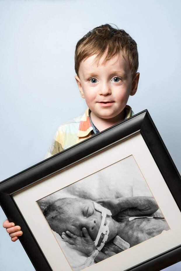 Недоношенные дети