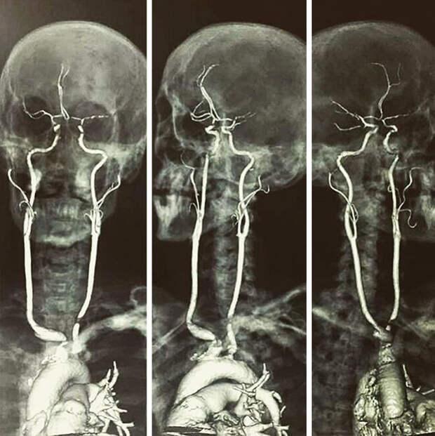 Изображения, которые расскажут о нашем теле лучше любого учебника