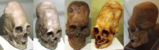 5 чужеродных черепов, которые наука не может объяснить