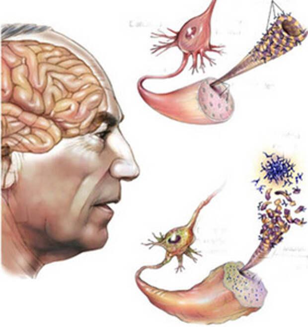 Развитие болезни Альцгеймера можно предотвратить