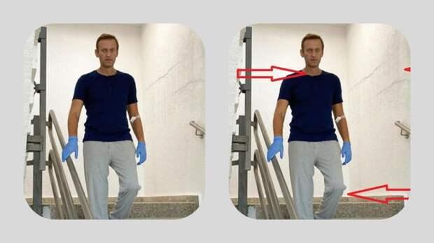 Фото Навального в стенах Charite детально разобрали в Сети
