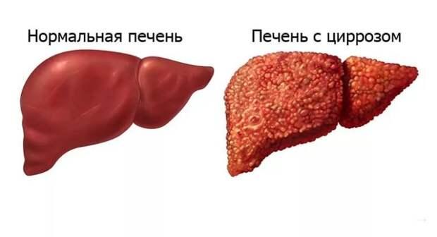 Цирроз печени: характеристика, причины и лечение