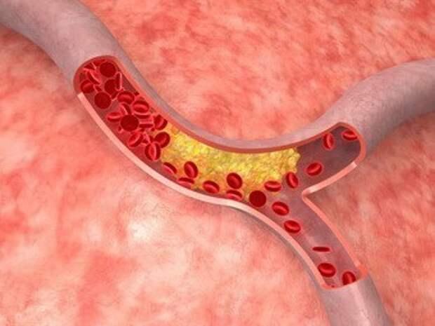 Стресс увеличивает количество белых кровяных клеток