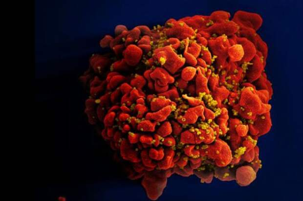 Красивые вирусы. Возбудители смертельных болезней под микроскопом