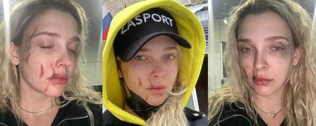 Актриса из «Универа» стала жертвой избиения в ночном клубе