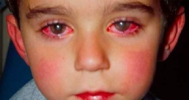 Этот мальчик потерял 75 % зрения из-за игрушки, которая есть в каждом доме!