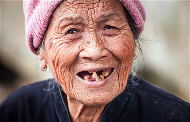 6 причин, которые превратят тебя в старушку раньше срока