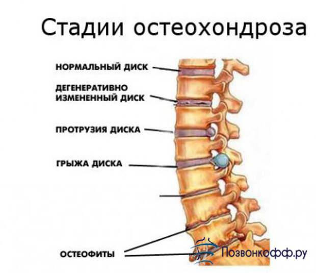 Здравотдел. Упражнения при остеохондрозе, сутулости, для коленных суставов