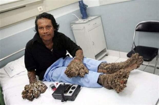 С его тела удалили 9 кг наростов! Но медицина тут оказалось бессильной...