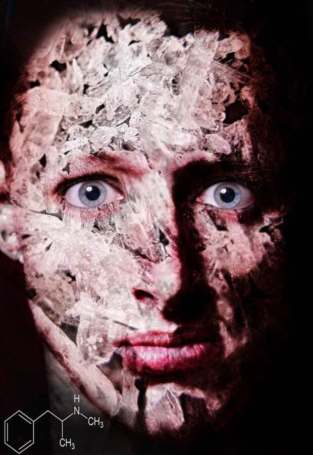 Они такие разные: фото людей под наркотиками показывают, как то или иное вещество влияет на мозг