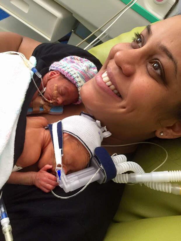 Они родились на 11 недель раньше срока... Но постоянно помогают друг другу бороться за жизнь!