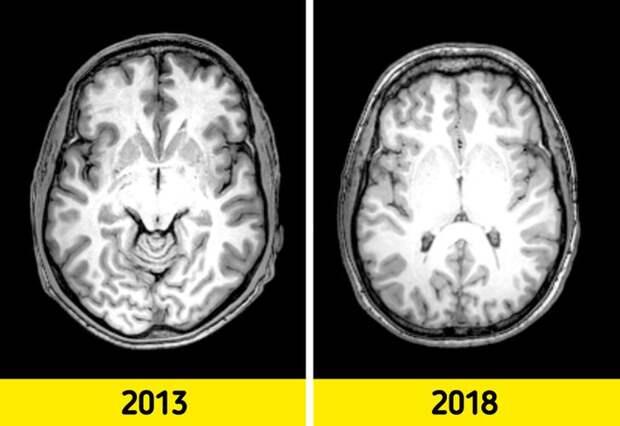 9 привычек, которые помогут вам омолодить свой мозг
