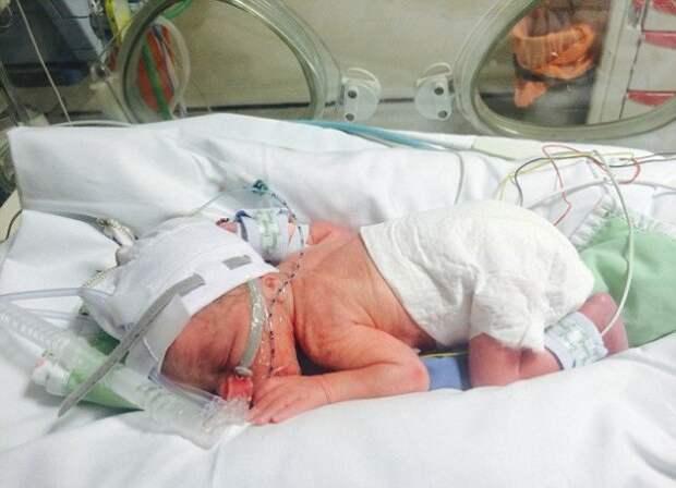 Когда врачи сделали кесарево сечение, их ждал настоящий шок: ребенка внутри не оказалось!