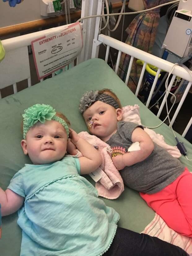 Эрин и Эбби Делейни, дети семейной пары Делейни из Северной Каролины близнецы сиамские, бывает же, выросли, жизнь, интересное, разделили