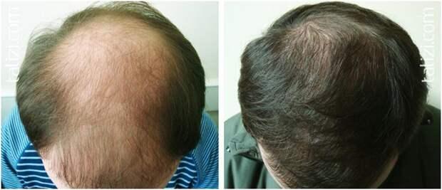 Супер-рецепт для волос, начинают расти даже на лысинах!