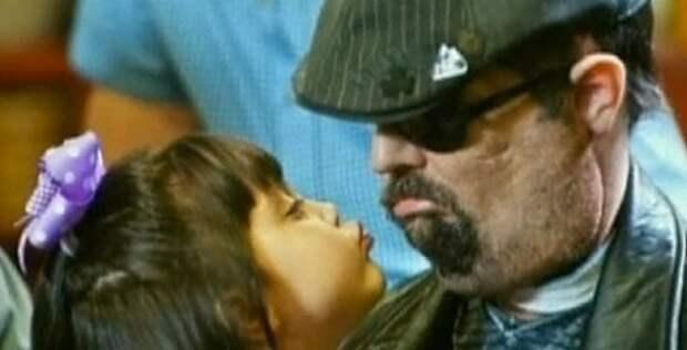 """""""У меня маленькая дочь, поэтому я должен жить ради нее!"""" Человек, лишившийся лица"""