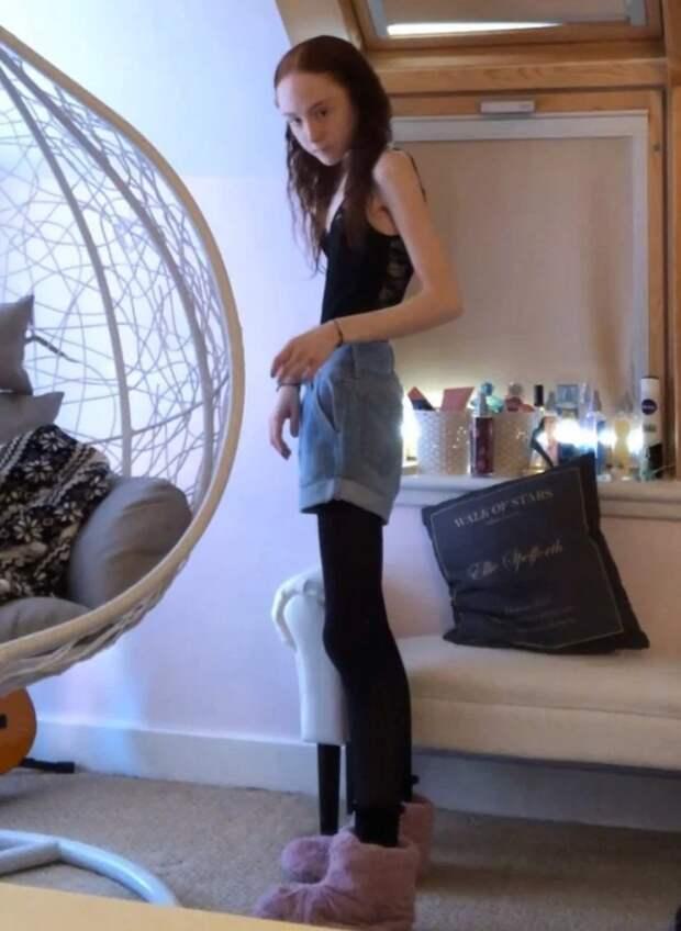 Накраю пропасти: как юная шотландка весом в25кг смогла преодолеть анорексию