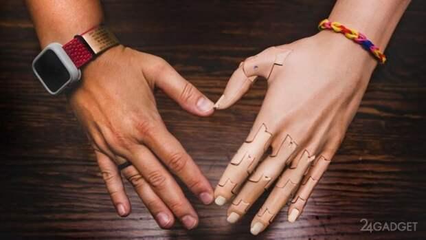 Роботизированный протез руки TrueLimb дешевле и реалистичнее современных аналогов