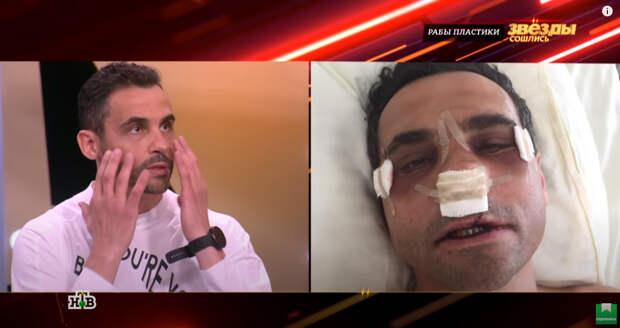 Потерял не только Лолиту, но и зубы: бывший Милявской рассказал о несчастном случае и шести операциях