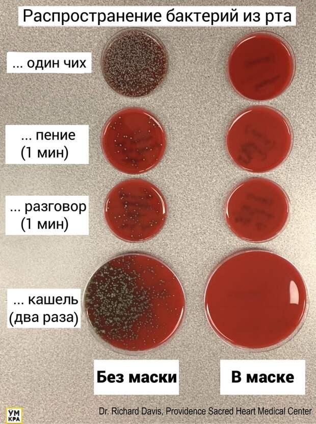 Учёный наглядно показал разницу распространения бактерий с медицинской маской и без неё