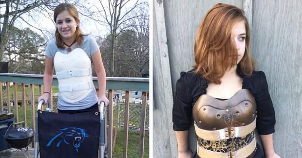 Девушка, выжившая в автокатастрофе, превратила ортопедический корсет в стимпанк-броню броня, девушка, корсет