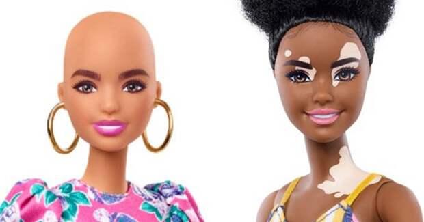 Mattel представил кукол без волос и с витилиго