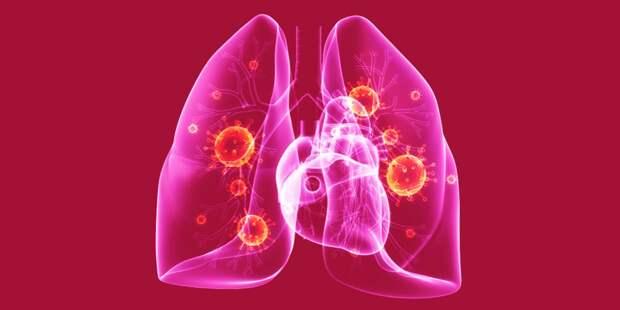 Вот как отличить воспаление легких от обычного гриппа