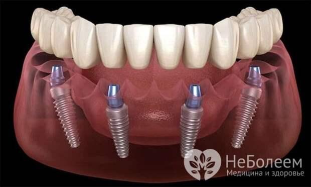Имплантация зубов All-on-4: преимущества и недостатки методики моментального протезирования