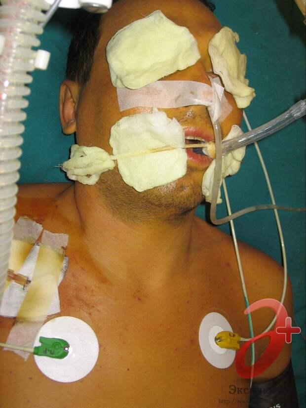 Печеночная недостаточность с печеночной комой – характерный исход нелеченного хронического гепатита С