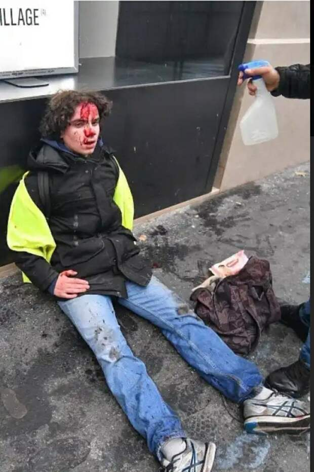 Youtube удалил ролик МИД РФ о протестах в Европе