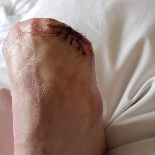 Из-за фиш-пилинга австралийке ампутировали пальцы ног