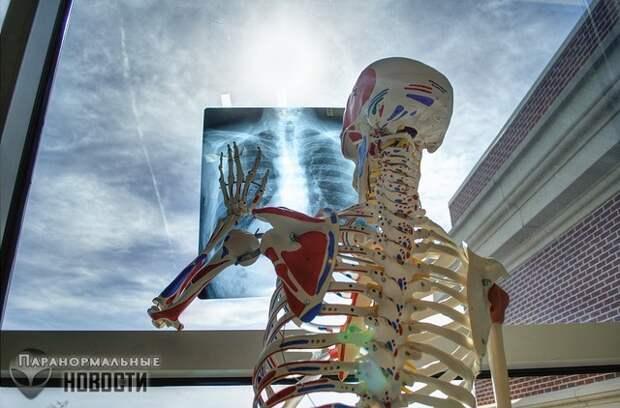 Странный и редкий феномен людей с чрезвычайно крепкими костями