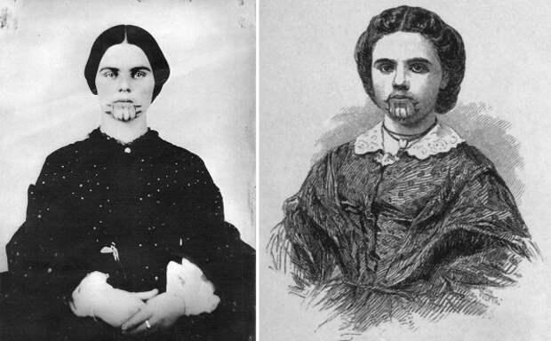 История Олив Оатман— девушки статуированным лицом, прожившей пять лет синдейцами