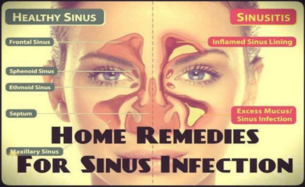 Лучшее средство для лечения синусита без антибиотиков